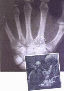 implante alien